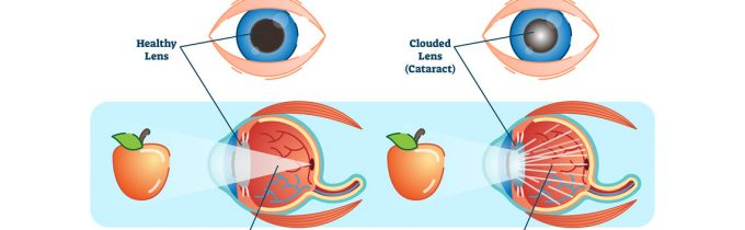 What is a Cataract? Different Types and Symptoms