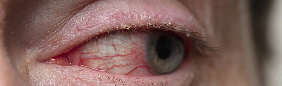 What is Scleritis and How Does it Affect the Eyes?