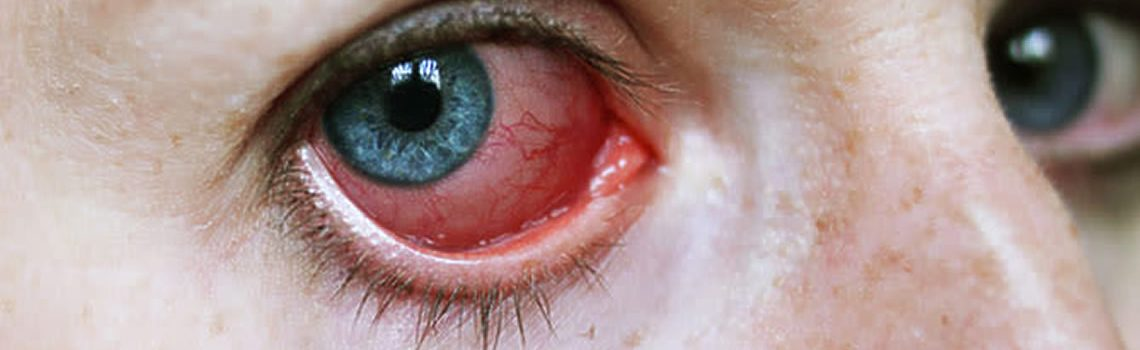 Uveitis: Causes, Symptoms, and Treatment