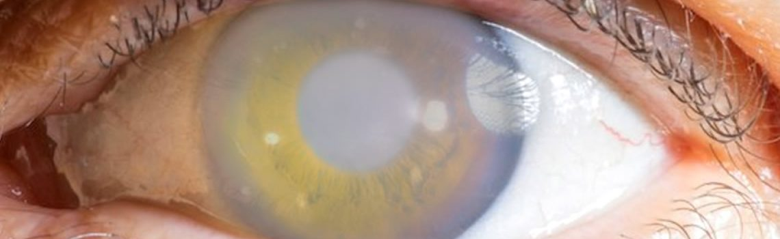 Untreated Glaucoma Can Lead to Blindness