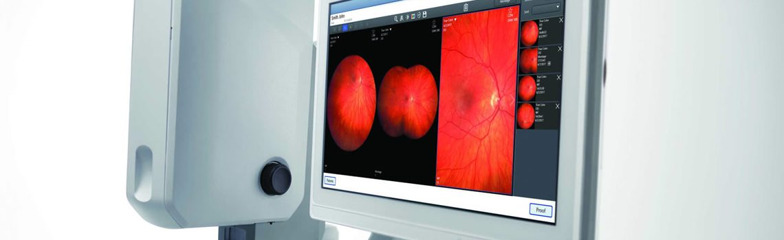 Eye Testing with the Ultra Widefield (UWF) Retinal Imaging Camera