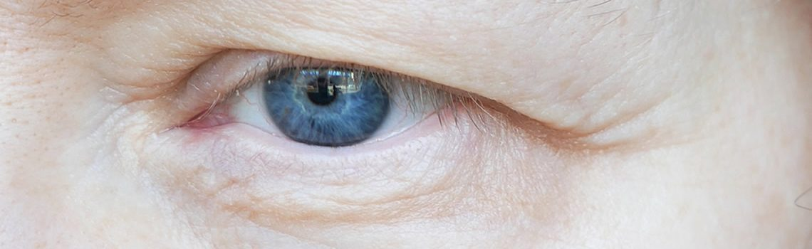 Ocular Myasthenia Gravis: Symptoms, Diagnosis and Treatment